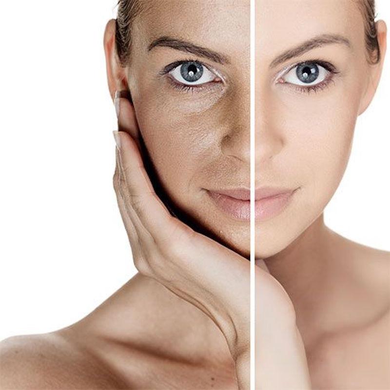 dilatare i pori senza vapore