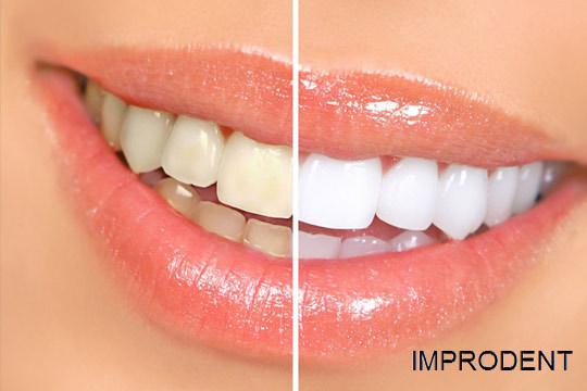 Blanqueamiento dental LED en Clínica Improdent