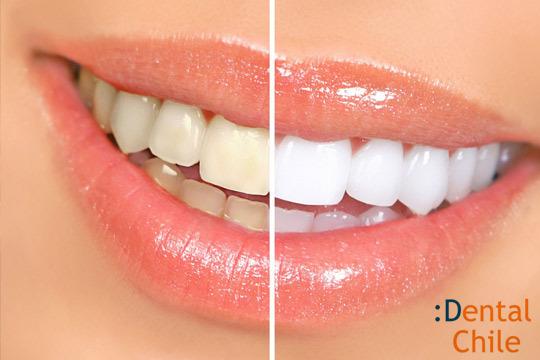 Blanqueamiento dental con fluoración, revisión, diagnóstico y kit ambulatorio en Clínica Dental Chile ¡Y al finalizar un obsequio muy dulce!