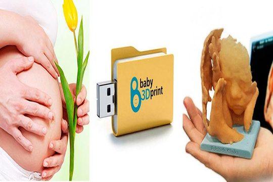 Sesión de ecografía 3D+4D ¡Con opción a una escultura de tu bebé!