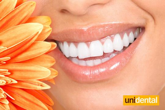 Con Unidental conseguirás una sonrisa perfecta con un blanqueamiento de larga duración + limpieza con ultrasonidos + revisión + férula