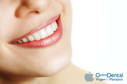 Limpieza dental + revisión en el Centro dental Virgen del Manzano ¡Presume de boca sana y bonita!