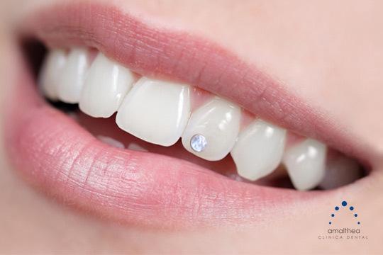 Cuida la salud de tu boda y dale un toque de glamour con la colocación de un Skyce de Swarovsky ¡Deslumbra con tu mejor sonrisa!