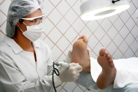 Elimina de forma eficaz los hongos de las manos o pies con las sesiones de láser en Vitalsana
