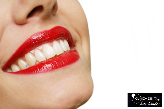 Acércate a la clínica dental Las Landas para una limpieza bucal mediante ultrasonidos y la opción de realizar 1, 2 o 4 empastes