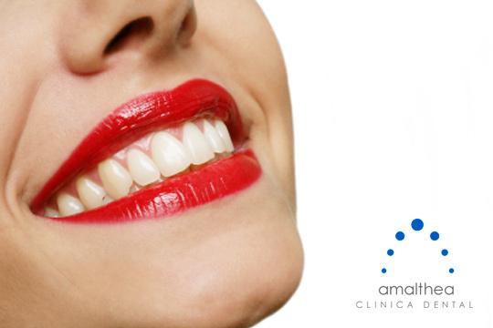 Presume de sonrisa deslumbrante con un blanqueamiento dental + revisión y opción a limpieza ¡El blanqueamiento se realiza en casa para tu mayor comodidad!