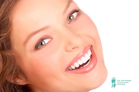 Combate el desgaste dental y la tensión sobre la mandíbula con una férula de descarga rígida ¡Incluye revisión, diagnóstico y pruebas!