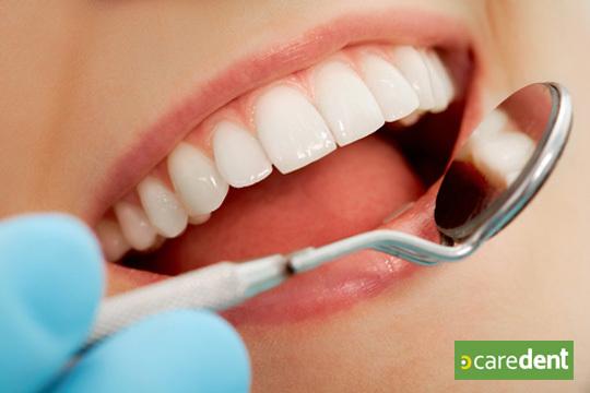 Cuida la salud de tu boca con una limpieza bucal con ultrasonidos, pulimento de manchas y revisión completa con radiografía y diagnóstico en Caredent