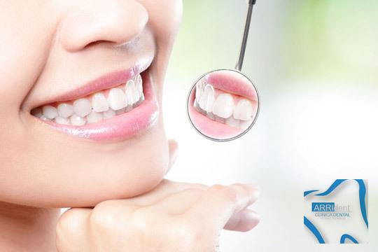 Cuida la salud de tu boca con una completa revisión con radiografías y diagnóstico y opción a limpieza bucal y fluorización