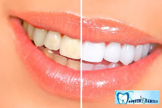 Luce la mejor de tus sonrisas con este tratamiento blanqueado con la última tecnología LED ¡Y sonríele a la vida!