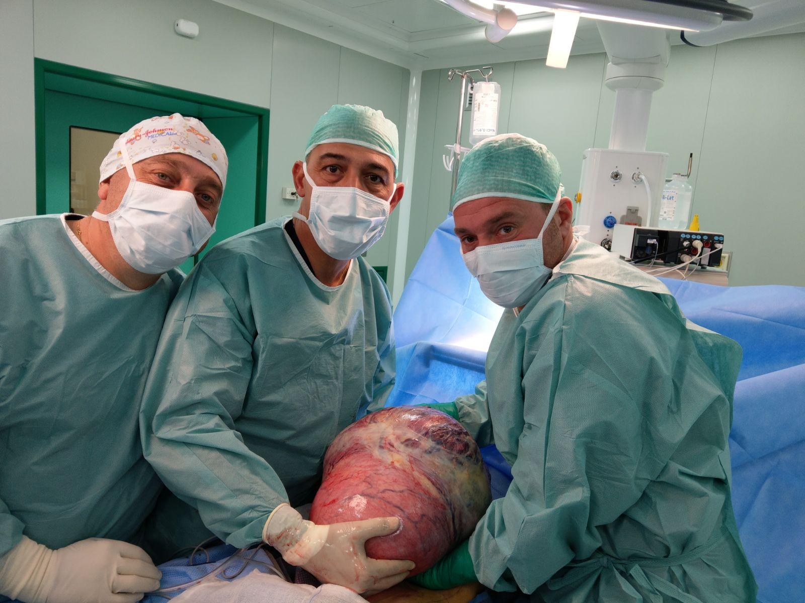 Campobasso, asportata massa tumorale da 12,5 chili alla Fondazione Giovanni Paolo II