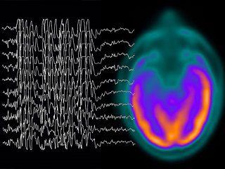 SALUTE – 'EpInForma', appuntamento al Neuromed sull'epilessia