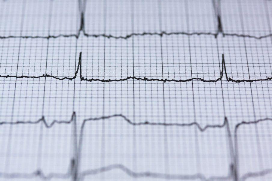 Van endur-se una màquina per fer electrocardiogrames