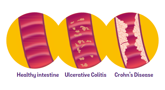 Diagram of healthy gut compared to gut with Crohn's or Colitis