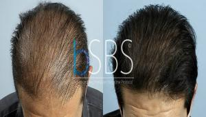 Maschera per capelli hyaluronic acido