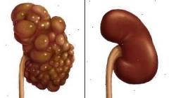 A causa di dolore di vita il fondo di stomaco può fare male