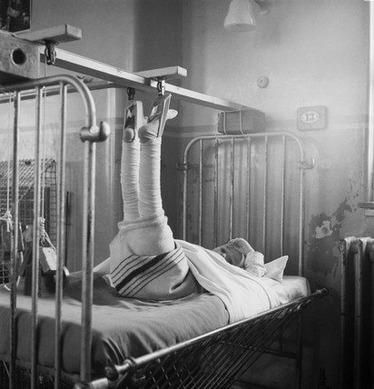 A patient in plaster at Whittington Hospital: 1954