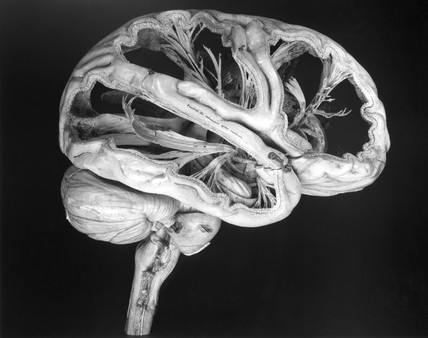 Model of a human brain, French, c 1825.