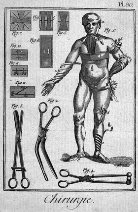 Bandaging a human figure, 1780.