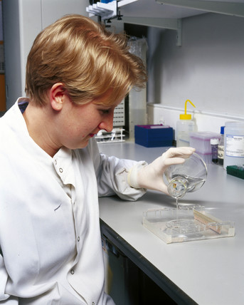 Scientist loading agarose gel to separate DNA fragments.