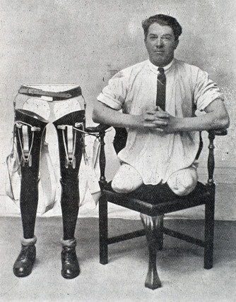 Man with amputated legs sitting beside a set of artificial legs, 1920-1930.