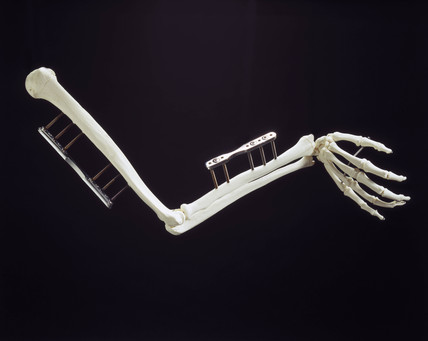 Skeletal arm with diamond-coated steel screws, 1998.