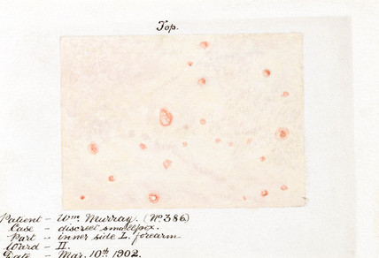Effects of smallpox on the skin, Glasgow, 10 March 1902.