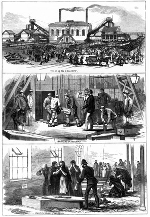 Wigan colliery disaster, 1877.
