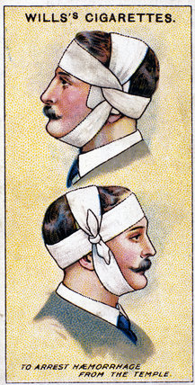 'To arrest haemorrhage from the temple'. Wills' cigarette card. Wills' cigarette card, 1913.