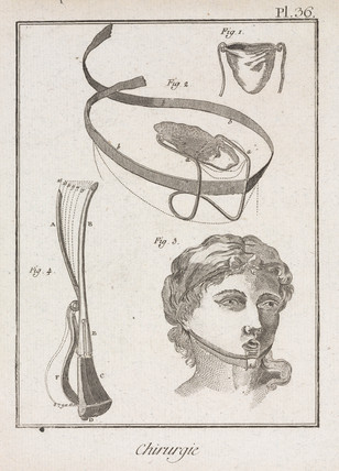 Surgical devices, 1780.