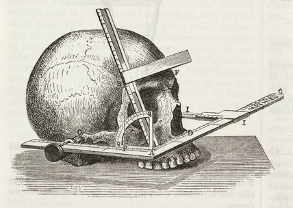 Measurement of the skull, 1883.