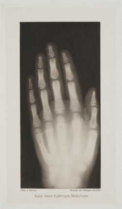 Hand of an 8 year-old girl, 1896.