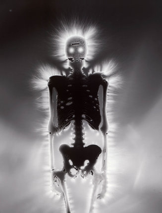 Kirlian photograph of a skeleton.