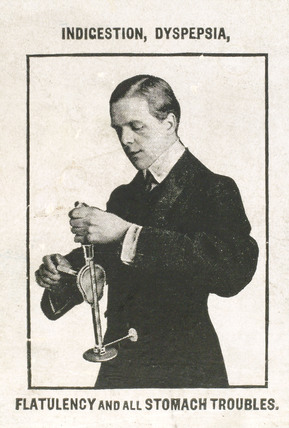 Using the 'Veedee' vibratory massager for digestive problems, c 1900-1925.