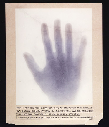 The first  X -ray negative of the human hand, 1896.