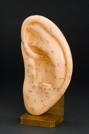 Model ear showing acupuncture points, 1970-1985.
