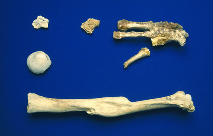 Humerus of an adult human, and broken foot bones, Egyptian, 4000 BC- AD 200.