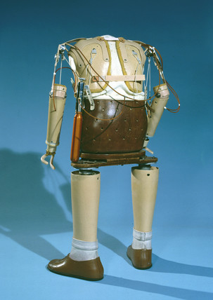 Prosthetic limbs, thalidomide child, 1979-8