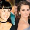 El antes y después de la rinoplastia en famosos