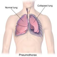 Cirugía del neumotórax