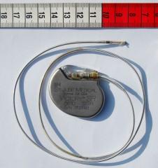 Implantación de marcapasos