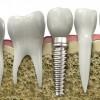 Implantes dentales en Madrid Cosas que considerar