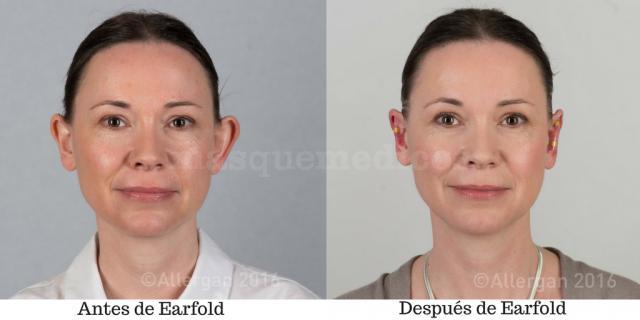 Antes y después de Earfold