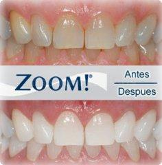 Blanqueamiento ZOOM. Una sonrisa Blanca es una sonrisa sana.