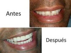 DISEÑO DE SONRISA - Tarsys Loayza Roys