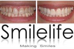 Clínica Smilelife Fuenlabrada