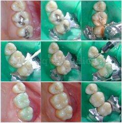 Cambio de obturaciones de amalgama - Clínica de Odontología Natural Dra. León