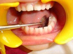 Corrección de la mordida cruzada - Clínica de Odontología Natural Dra. León