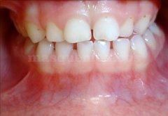 Alineación de la línea media - Clínica de Odontología Natural Dra. León