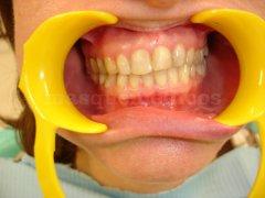 Desequilibrio oclusal en un paciente adulto - Clínica de Odontología Natural Dra. León